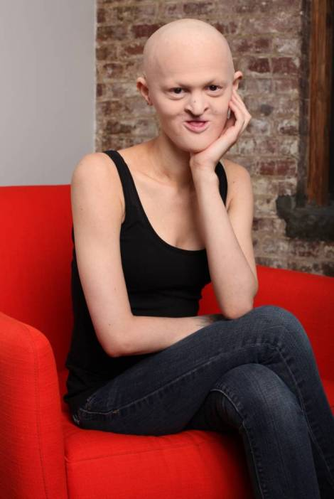 *** EXCLUSIVE - VIDEO AVAILABLE ***NEW YORK - JANUARY 19: Melanie Gaydos poses for a picture at a studio on January 19, 2015 in New York City. A MODEL has hit the big time despite suffering from a rare genetic condition that severely affects her appearance. Melanie Gaydos, 26, was born with Ectodermal Dysplasia, an illness that has left her hair, teeth and skin undeveloped. She often draws stares from other models that are not used to her unconventional look while on set. Melanie's modelling career started to take off when she posed for her photographer boyfriend after moving to New York City four years ago. PHOTOGRAPH BY Ruaridh Connellan / Barcroft USA UK Office, London. T +44 845 370 2233 W www.barcroftmedia.com USA Office, New York City. T +1 212 796 2458 W www.barcroftusa.com Indian Office, Delhi. T +91 11 4053 2429 W www.barcroftindia.com