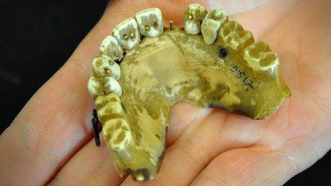 placa dentara veche