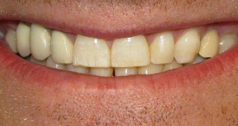 Remedii impotriva petelor de pe dinti